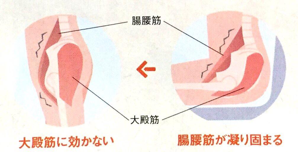 〜腰痛撃退へのFirst Step!効果的な大腰筋ストレッチの紹介〜
