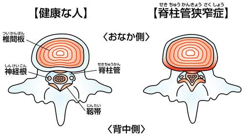 腰痛を引き起こす病気Part2~脊柱管狭窄症とは?~
